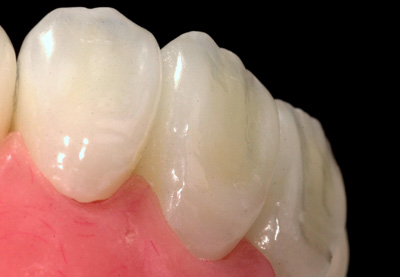 haupt-dental-lab-crowns-sm