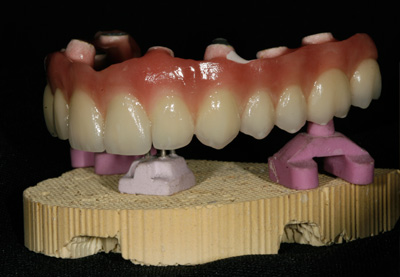 haupt-dental-lab-implants-sm