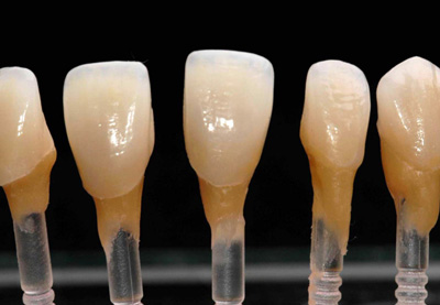 haupt-dental-lab-veneers-sm