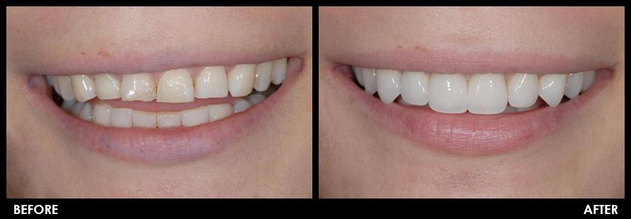 E Max Crowns And Veneers Haupt Dental Lab Brea Ca